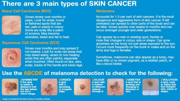 3 types of skin cancer Oct 2016